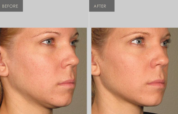 Ultherapy tighten jawline